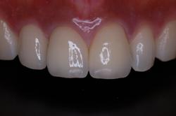 前歯3本のオールセラミック