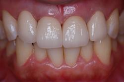 術後前歯4本オールセラミックス