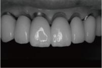 前歯部インプラント補綴