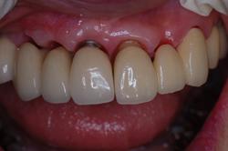 インプラント補綴と天然歯補綴の ブリッジ試適時