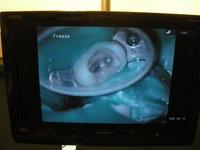 ラバーダム 根管治療のサムネール画像