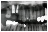 術直後のレントゲン写真