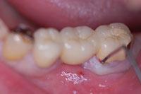 術前最後臼歯の写真