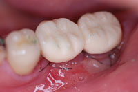 仮歯を装着した状態