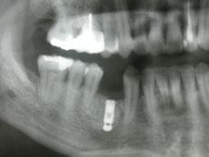 術後のレントゲン写真