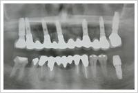 上顎の治療が終了した時点のレントゲン写真