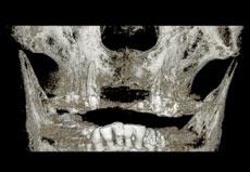 初診時のCT画像