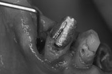 犬歯の骨欠損の状態