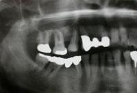 術前のレントゲン写真
