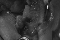 粘膜を剥離した状態