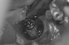 歯肉弁を剥離し丁寧に不良肉芽を除去している状態