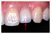 歯肉の変化の状態