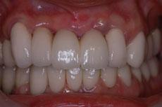 歯冠乳頭形成術1ヵ月後