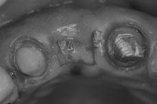 肉を口蓋側から織り込むための切開線の写真