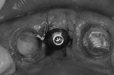 ジンジバルロールテクニックにて頬側のボリュームを確保した状態