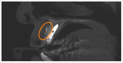 CT画像前歯部GBR矢状面