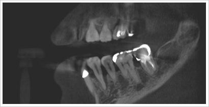 CT診断画像インプラント術前矢状面