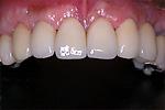 抜歯即時埋入治療例補綴装着時