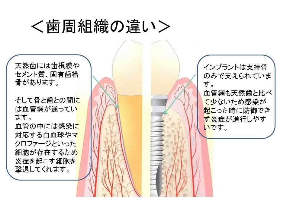 歯周組織の違い