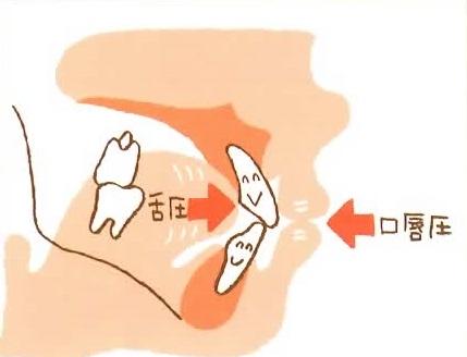 舌癖の画像