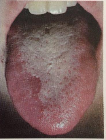 舌苔が付着した状態