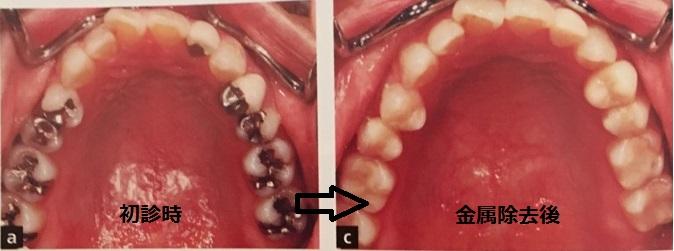 初診時と金属除去後の口腔内の状態