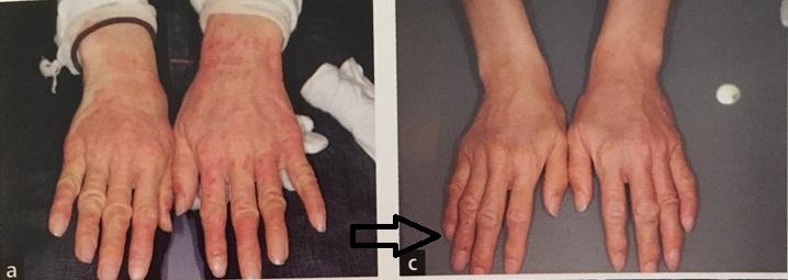 アトピー性皮膚炎の初診時と金属除去後の状態
