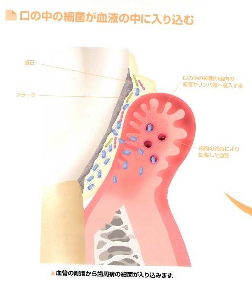 歯周病菌が血管内へ侵入