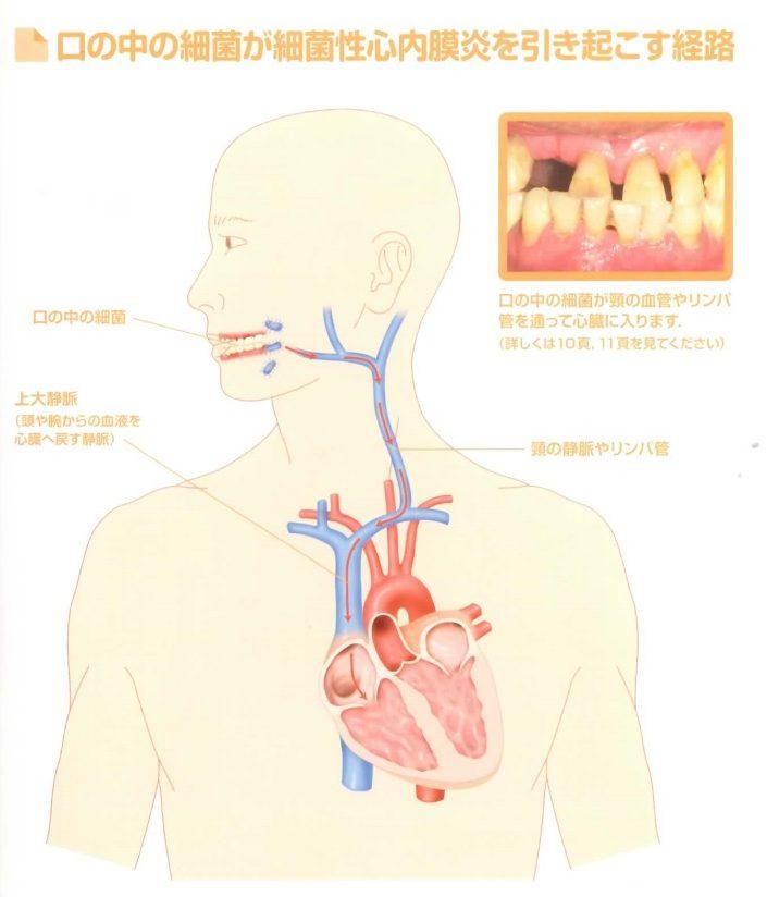細菌性心内膜炎を引き起こす経路