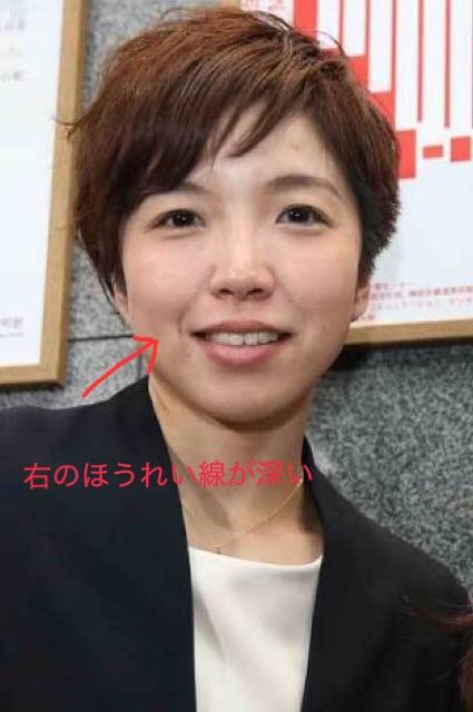 小平奈緒のほうれい線の写真