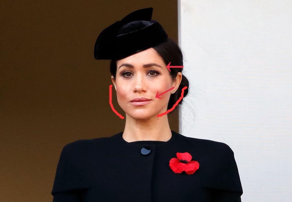 メーガン妃の写真